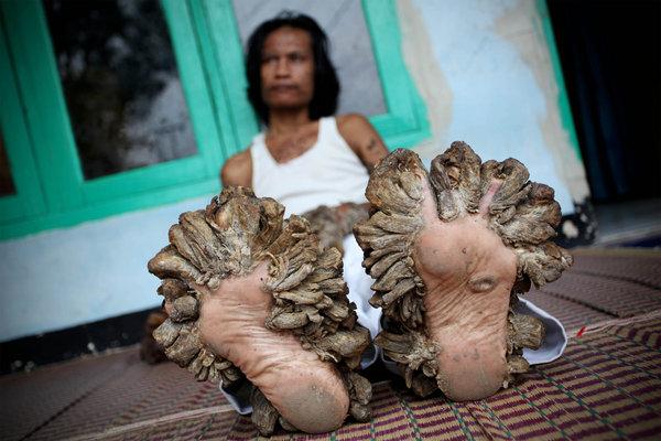 人与兽1715ia{0_印尼男子四肢长满枝根状肉瘤 得怪病变\